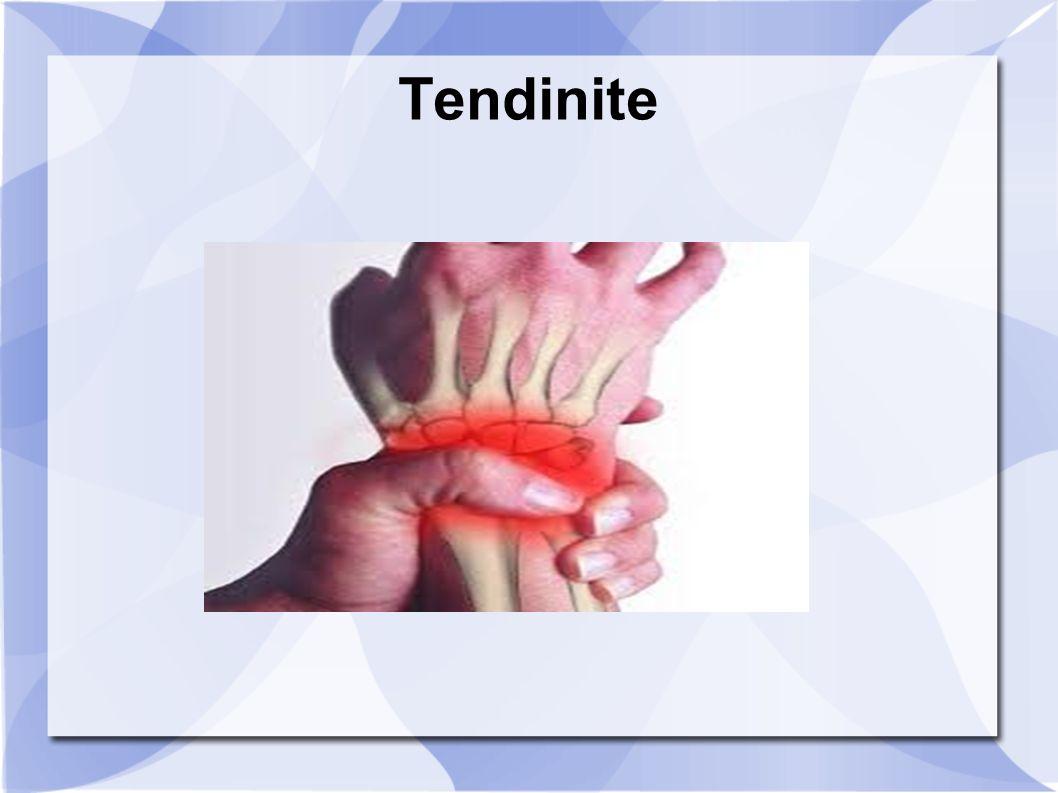 Tendinite coude : D'où vient cette maladie ? Quelles sont ses causes ?